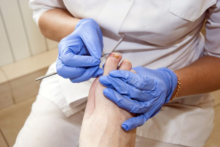 Nurse with blue medical gloves performing foot care services on a foot of a patient